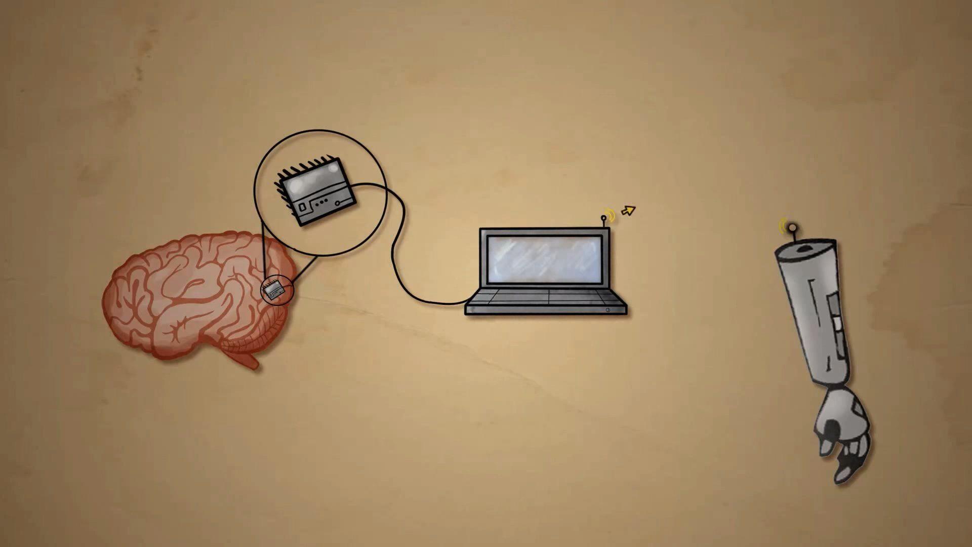 Brain Computers