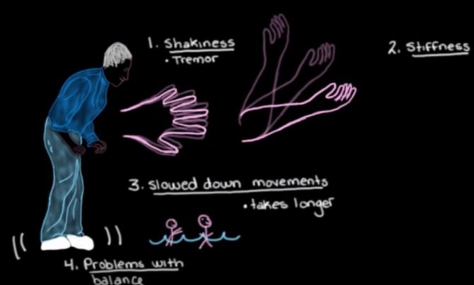 Parkinson's disease diagnosis through AI.